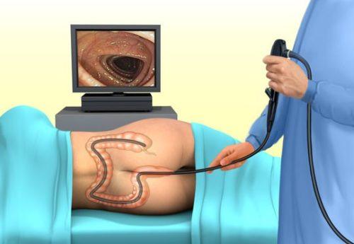 колоноскопия кишечника