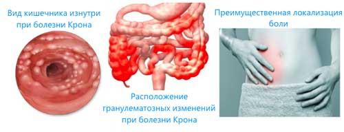 локализация болезни Крона