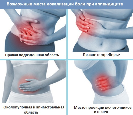 локализация боли в низу живота