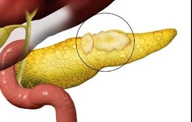 поражение поджелудочной железы