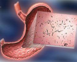 поверхность желудка