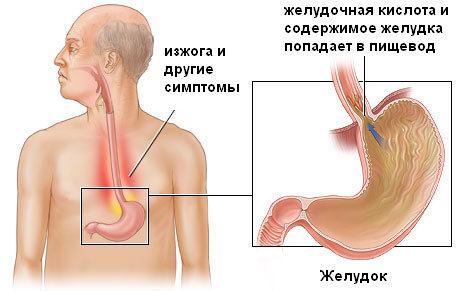 воспаление пищевода из-за желудка