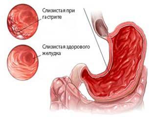 слизистая желудка при гастрите