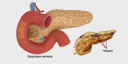 сравнение здоровой поджелудочной железы и с некрозом