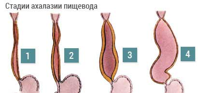 степени ахалазии