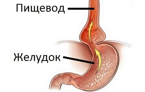выброс в пищевод желудочного сока