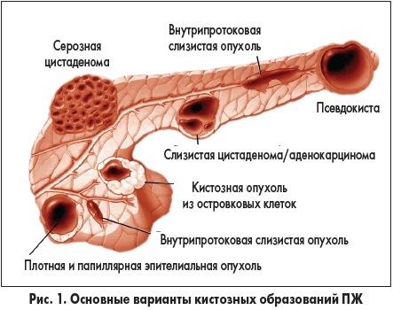 виды опухолей поджелудочной