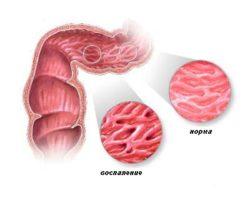 поражённый кишечник и норма