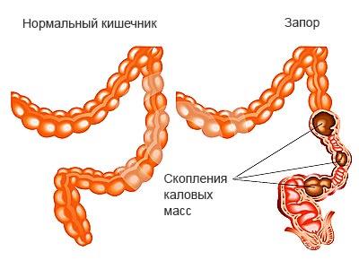 сравнение нормального кишечника и при запоре
