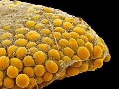 жировые клетки